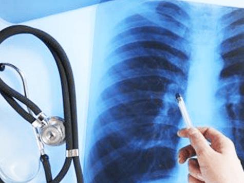 Desarrollan en israel análisis de sangre para detectar a tiempo el cáncer de pulmón