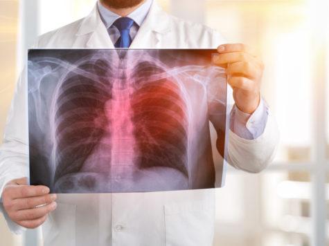 Un análisis de sangre revolucionario detectaría el cáncer de pulmón cuando aún es curable